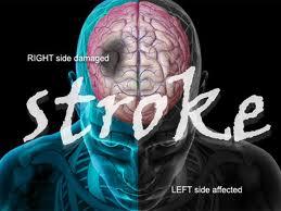 stroke.jpg