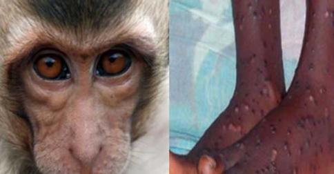 virus-cacar-monyet.jpg